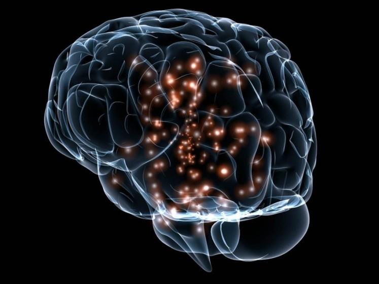 autismo y trastornos des neurodesarrollo